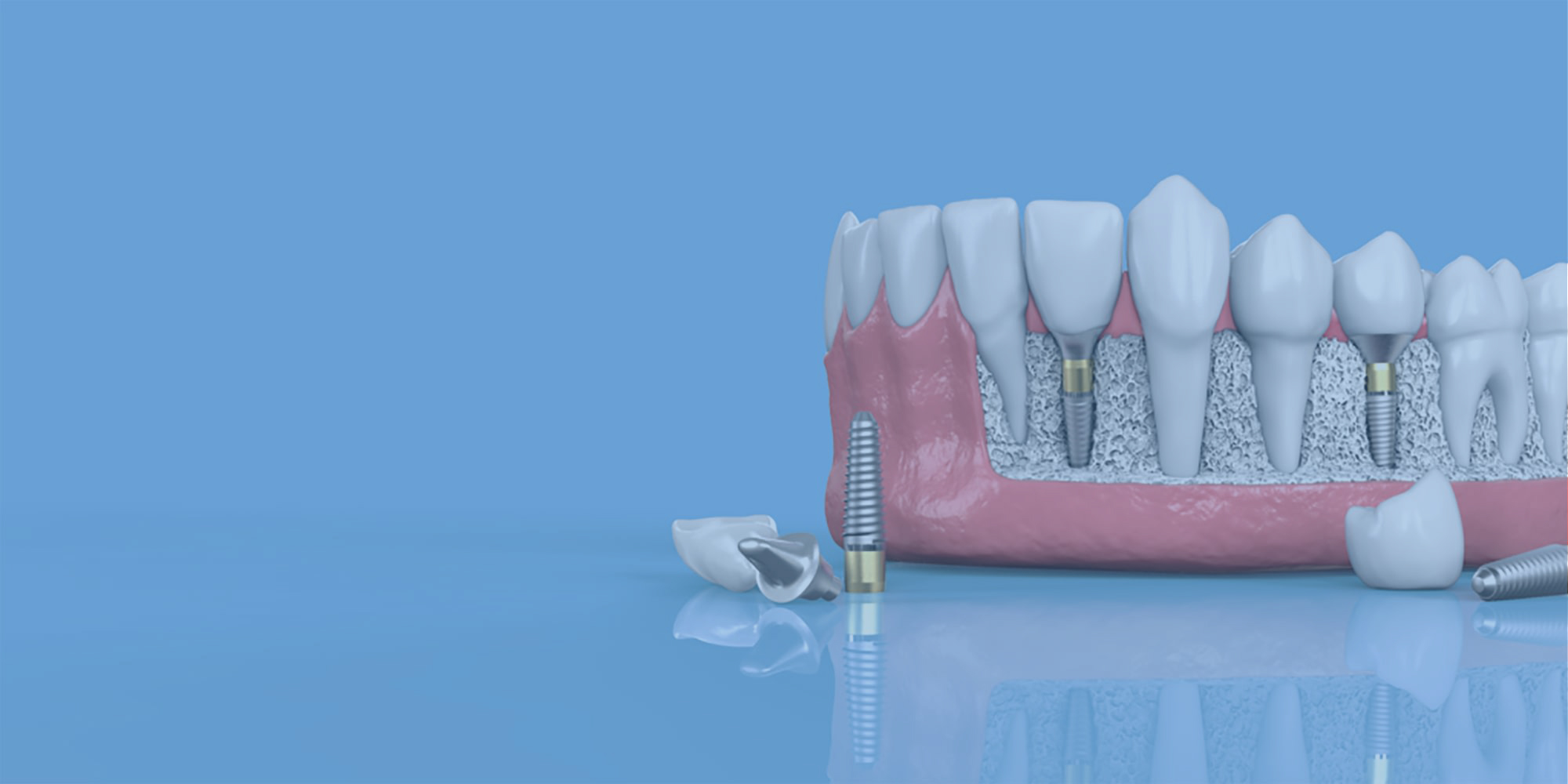 dental-implant-model